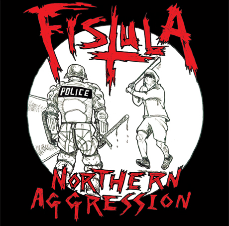 Fistula Northern Aggression