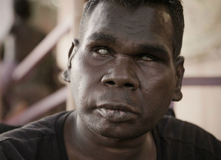 Gurrumul Directed by Paul Damien Williams