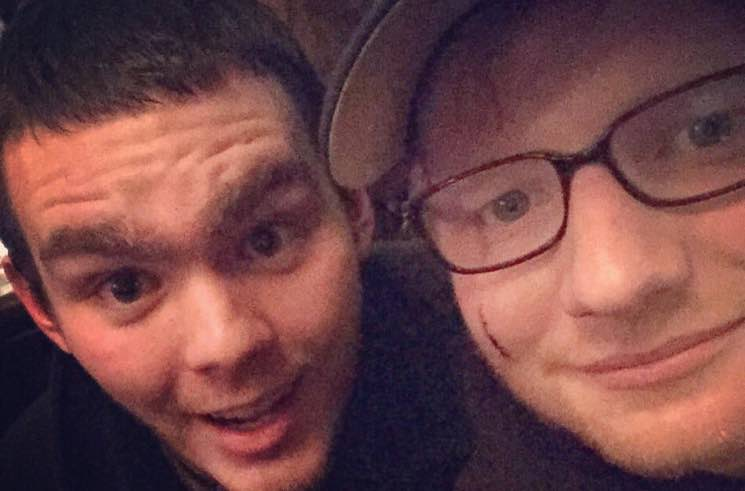 ​Princess Beatrice Accidentally Sliced Open Ed Sheeran's Face with a Sword