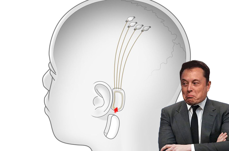 You Will Never Need Headphones Again with Elon Musk's Brain Implant