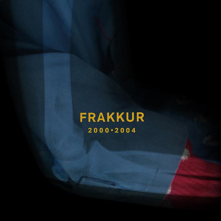 Sigur Rós' Jónsi to Release Solo Electronic Music as Frakkur