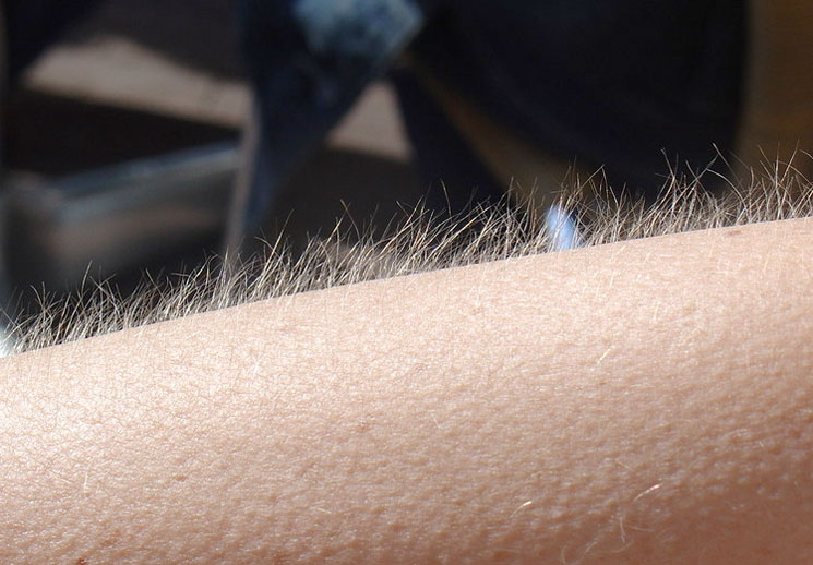 Get Goosebumps from Music? You May Be More in Touch with Your Emotions, Study Finds