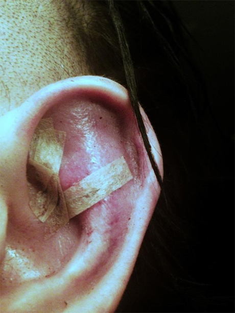 Marilyn Manson Gets Ear Reattached After Fight