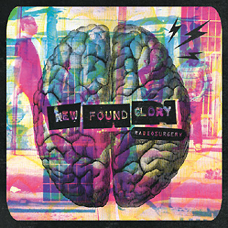 New Found Glory Announce 'Radiosurgery'