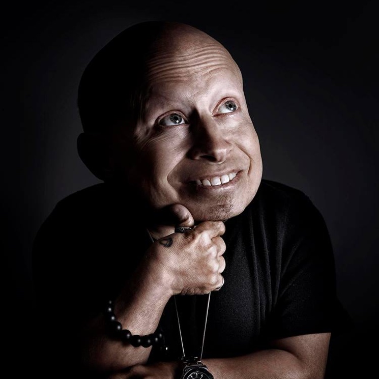 Verne Troyer Passes Away