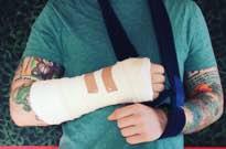Ed Sheeran Injured in Bicycle Accident