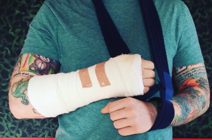 Ed Sheeran's Asia concerts in doubt after arm injury