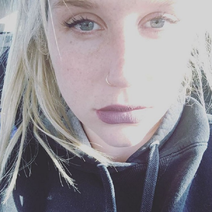 Kesha Speaks Out on Abuse in Open Letter