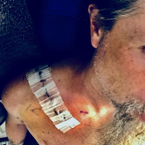 Lamb of God Drummer Reveals Accident That Sidelined Him from Slayer Tour