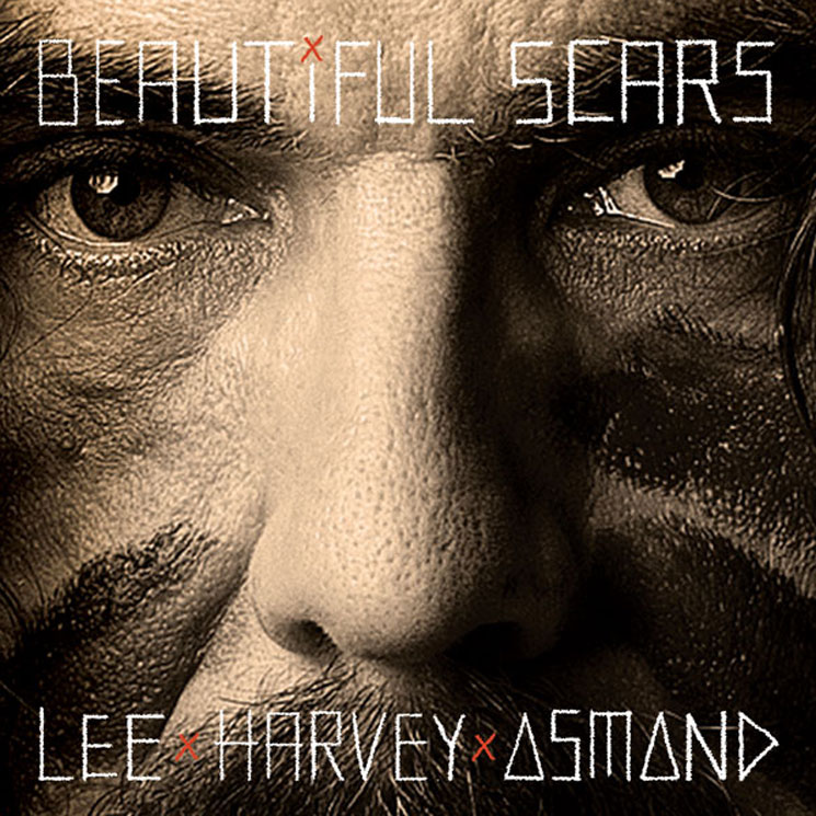 Lee Harvey OsmondBeautiful Scars